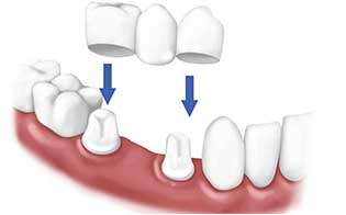 dental crowns treatment in pune