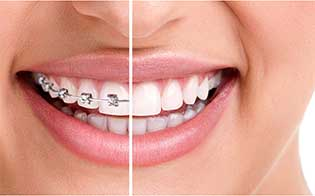 orthodontics and braces specialist in pune
