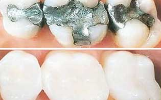 tooth filling treatment in pune